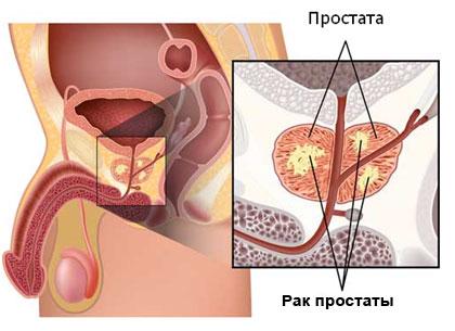 Вторичные иммунодефициты принципы лечения